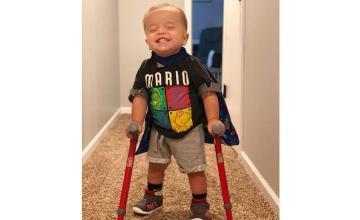 A little boy with spina bifida becomes an Internet sensation