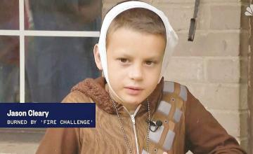 Michigan Boy, 12, Severely Burned by friends in Viral 'Fire Challenge'